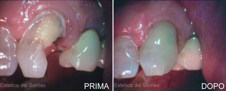 lavori odontoiatrici prima e dopo